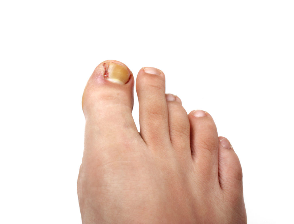 Ingrown Toenail Treatment Dr. Paul Brody