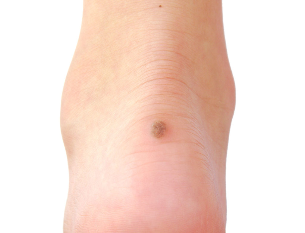Foot Wart Treatment Dr. Paul brody