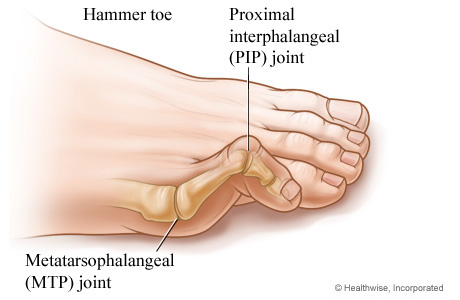 Hammer Toe Treatment Dr. Paul Brody