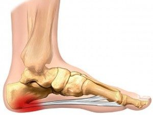 Plantar Fasciitis Treatment Dr. Paul Brody