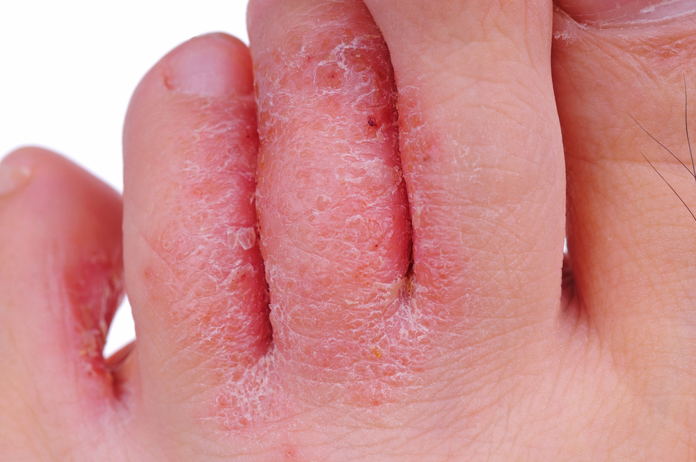 Athletes Foot Treatment Dr. Paul Brody