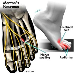 Neuromas Treatment Dr. Paul Brody