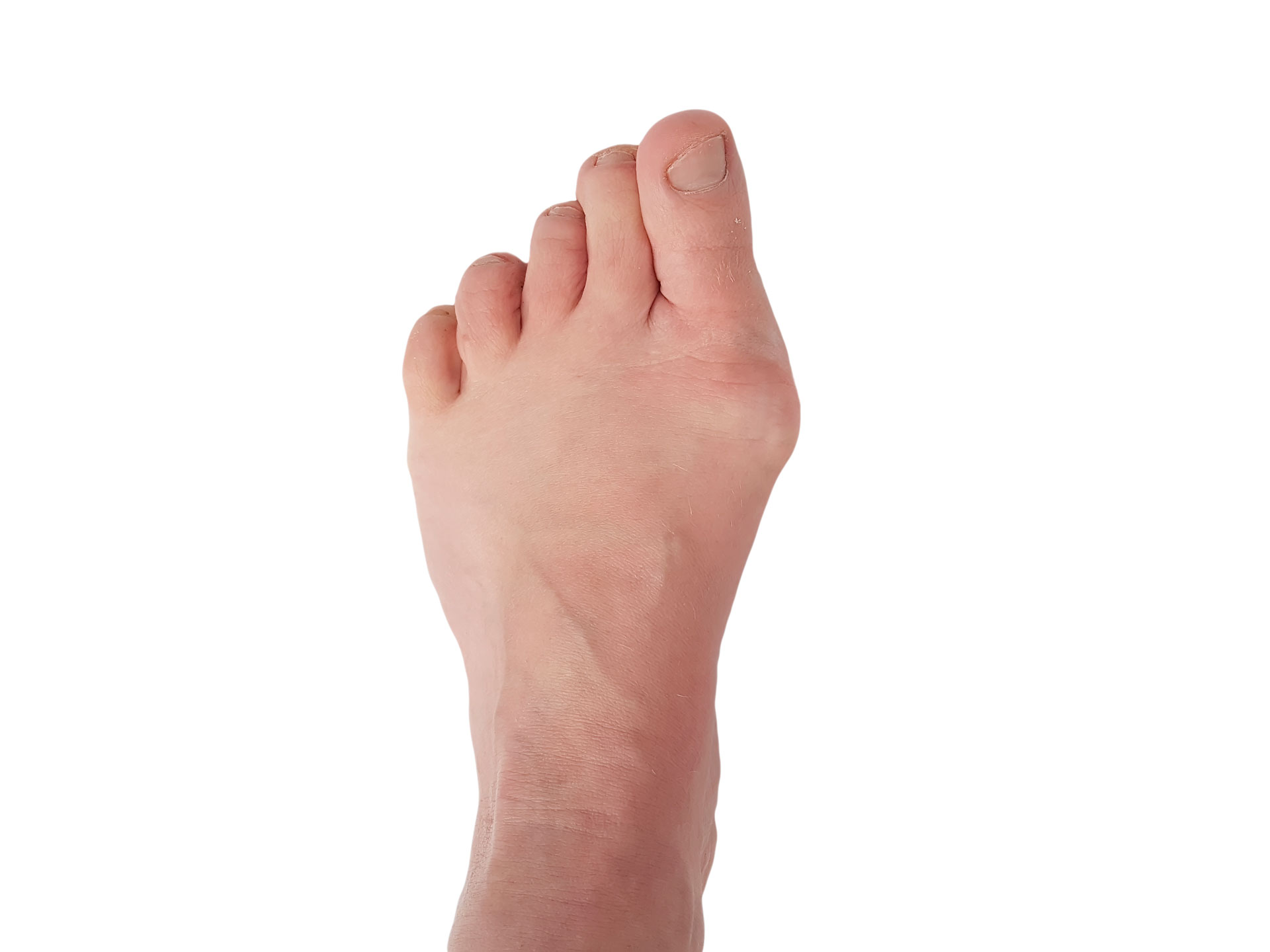 Bunion Treatment Dr. Paul Brody
