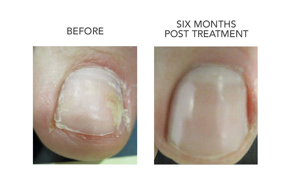 CUTERA BEFORE AND AFTER FUNGAL TREATMENT