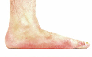 Flat Feet Treatment Dr. Paul Brody