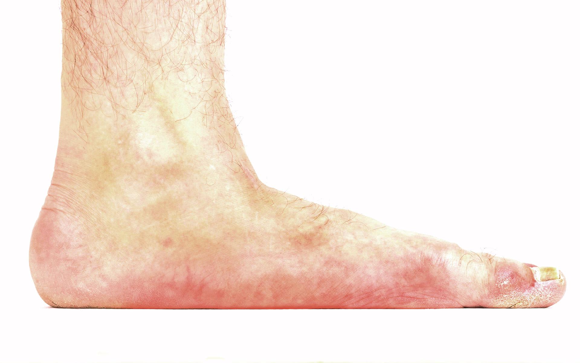 Flat Feet Treatment Dr. Paul Brody